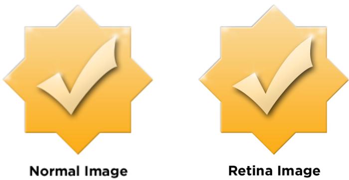 Ejemplo de imagen Retina